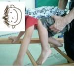 不安定なところを移動 OT(作業療法)